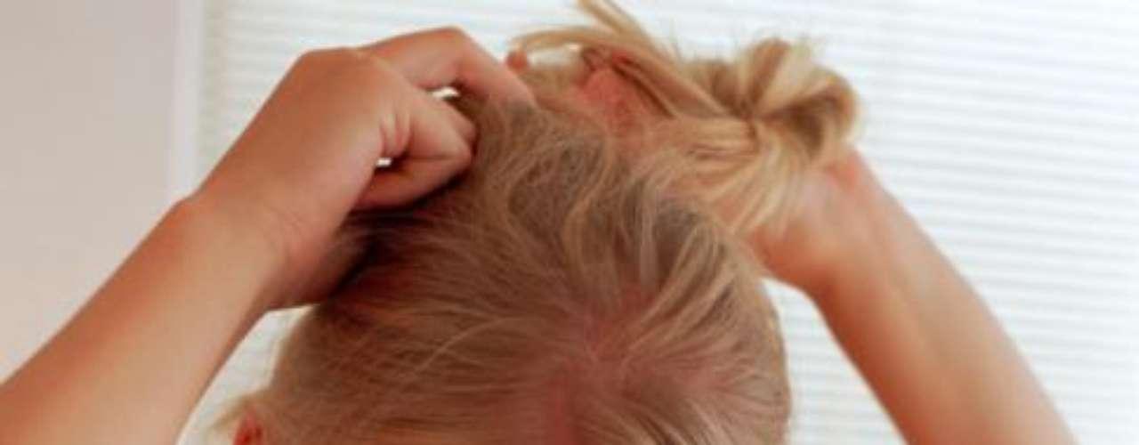 Invista nos acessórios: tirar partido de acessórios para o cabelo ajuda a diminuir a aparência de um corte errado. Tem um corte muito curto? Opte pelo granpinhos e fivelas coloridas
