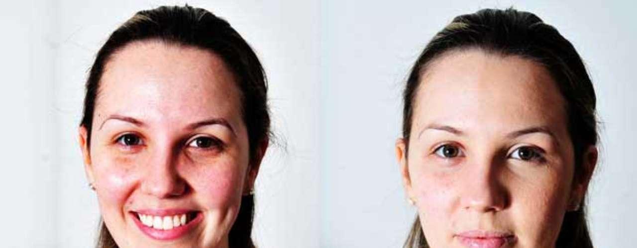 Compare o antes e o depois da pele - sem maquiagem, a pigmentação rosada prevaleceu, especialmente nas bochechas