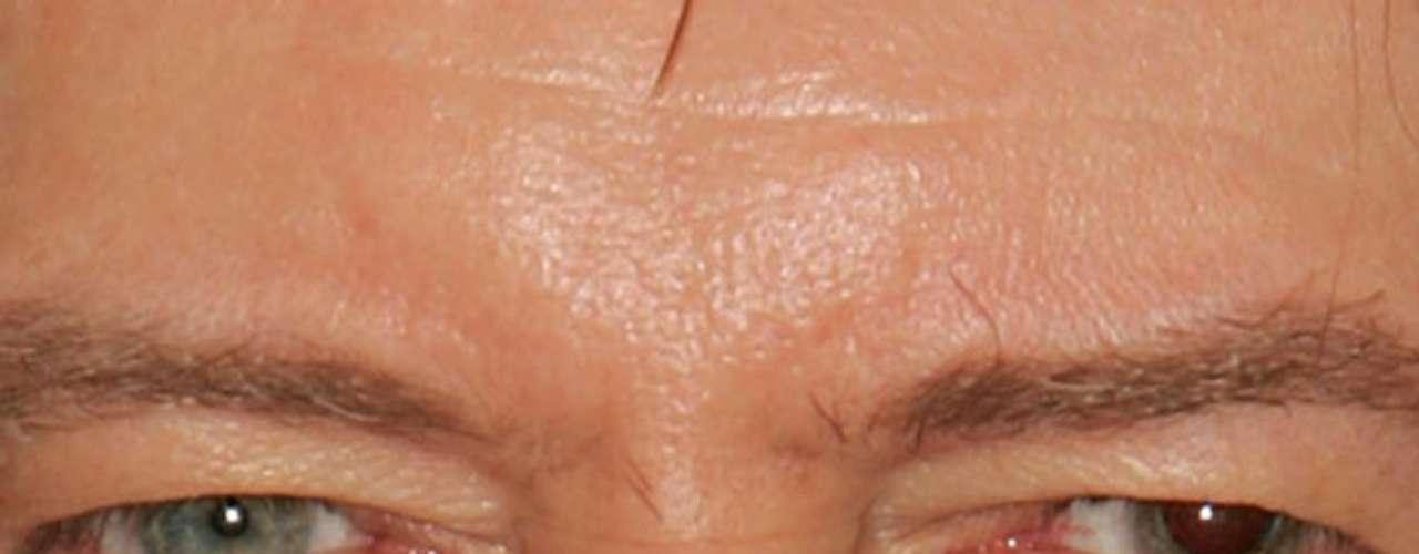 Ele tem um olho azul e outro com heterocromia central