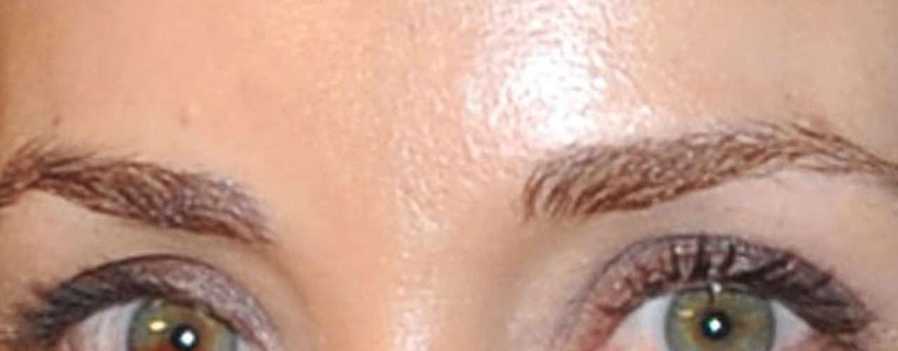 Ela tem uma manchinha que diferencia o olho esquerdo do direito