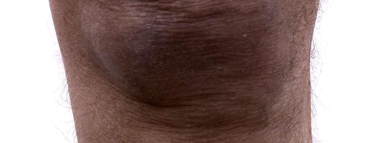 As varizes mais simples e fáceis de serem tratadas são os vasinhos. Com a complicação da situação das veias, pode haver inchaço das pernas e pés, dor e desconforto. Caso esta situação se prolongue por muitos anos, pode aparecer manchas na pele, chamadas de dermatite ocre e que acontece entre 2% e 3% dos pacientes.Em seguida, a forma mais grave de varizes é quando surgem úlceras, que são feridas na pele. Comum em pessoas de idade mais avançada, este tipo demanda um tratamento mais difícil para eliminar a dor e as possíveis infecções