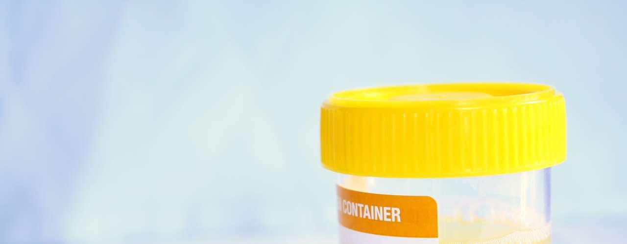 Como é feito o diagnóstico? A partir do momento em que o paciente apresentar sintomas da infecção urinária e tiver suspeitas do problema, é recomendado procurar um médico. No geral, o diagnóstico é feito por meio do exame de urina, que mostra a quantidade de germes presentes no trato urinário