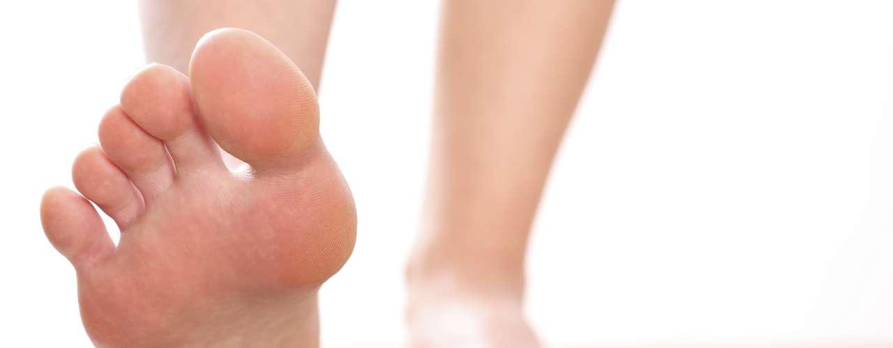 Quais problemas o joanete pode causar?  O joanete pode causar uma série de problemas, entre eles dores, calosidade, bursite e tendinite. \