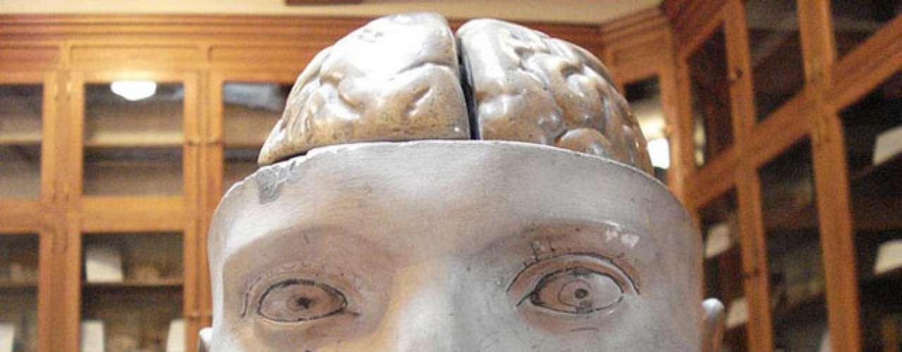 Indiana Medical History Museum, Indianapolis, Indiana, Estados Unidos. O museu fica localizado num antigo manicômio. Lá, os médicos estudaram o cérebro de alguns pacientes mortos, tentando desvendar as causas da doença. No museu você pode ver instrumentos médicos horríveis, além de lâminas de cérebro de diversos pacientes com lesão neurológica