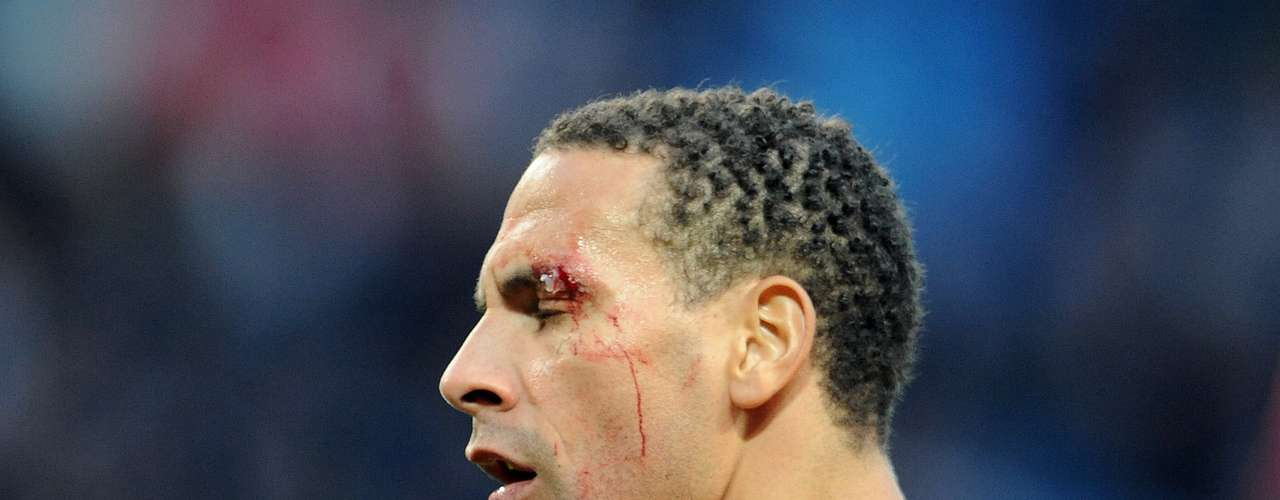 Objeto arremessado por torcedor do City feriu o rosto de Rio Ferdinand