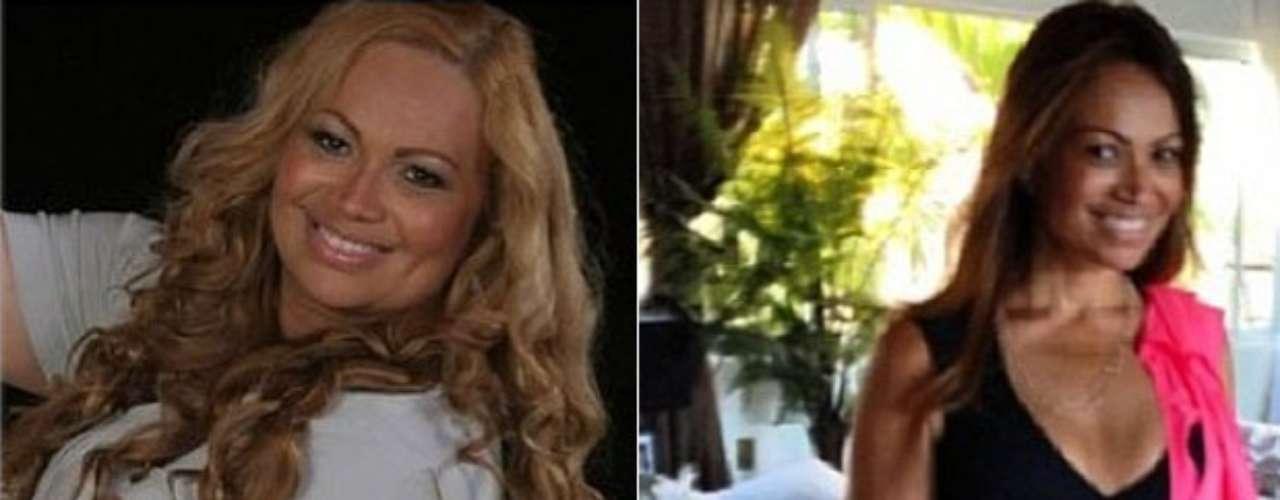 Solange Almeida, do Aviões do Forró, postou nas redes sociais um depoimento sobre sua cirurgia de redução de estômago. A cantora comemora dia 31 de janeiro cinco anos da cirurgia. \