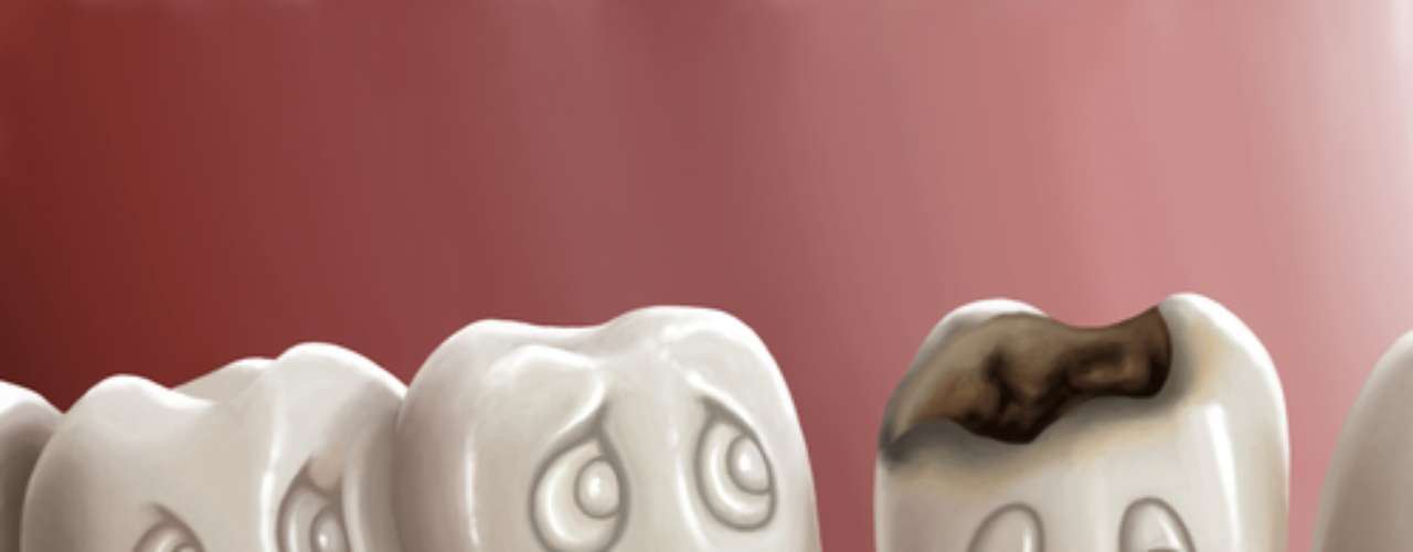 Se o processo de cárie está acontecendo e os dentes estão perdendo mineral, quando o flúor entra em cena, a perda é muito mais lenta. Ao mesmo tempo, se houver interrupção do processo da cárie, o flúor ajuda a repor minerais perdidos