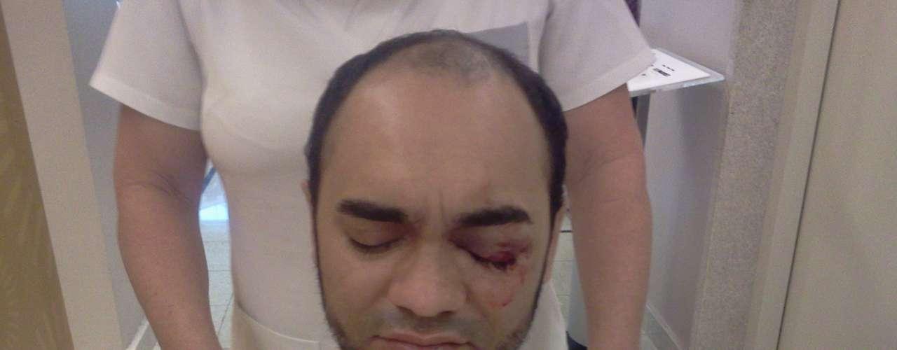 14 de junho - Sérgio Silva sofreu lesões no olho e uma fratura na órbita