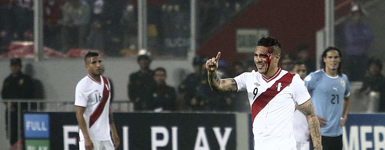 Aos 22 min do primeiro tempo, o jogador sofreu uma cotovelada de Walter Gargano, da seleção uruguaia, e precisou ser levado para uma clínica