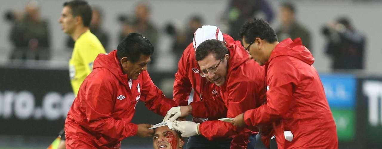 Segundo Julio Segura, médico da seleção do Peru, o jogador foi submetido a uma tomografia, que não detectou problemas no crânio