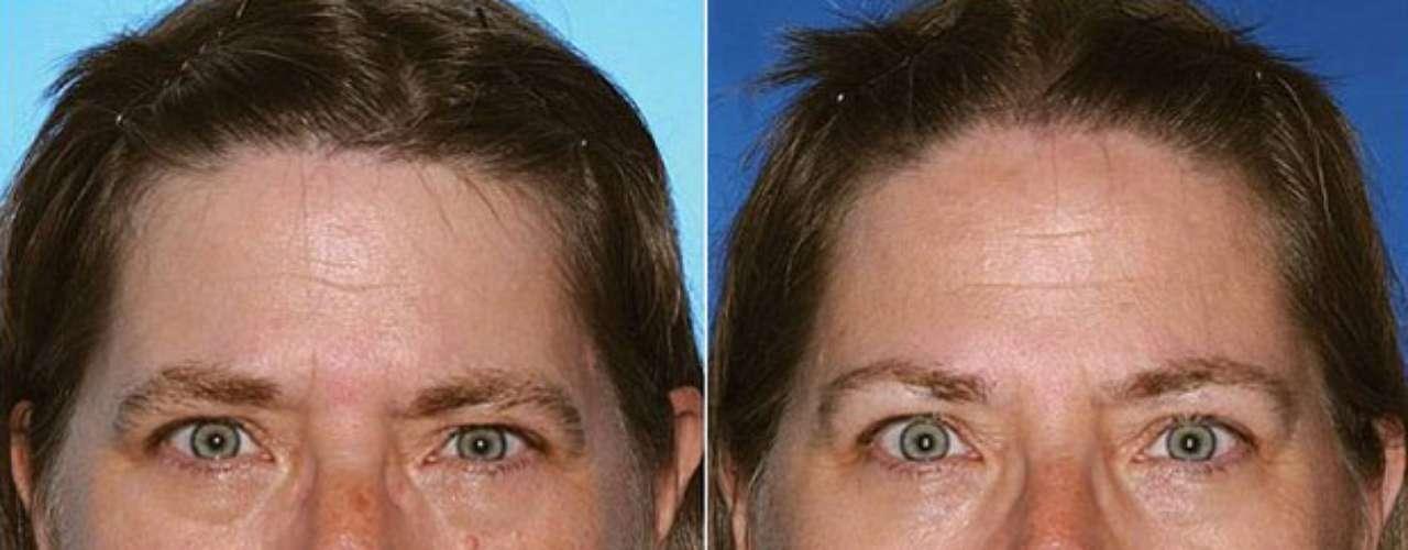 A gêmea à esquerda fumou 17 anos a mais que a da direita. A diferença é notável na pálpebra inferior e nas rugas dos lábios
