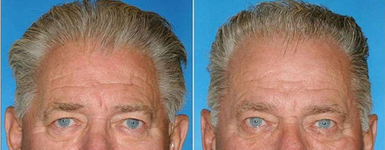 Os dois gêmeos fumaram, mas o da direita manteve o hábito por 14 anos a mais. Sua pele é mais enrugada e flácida
