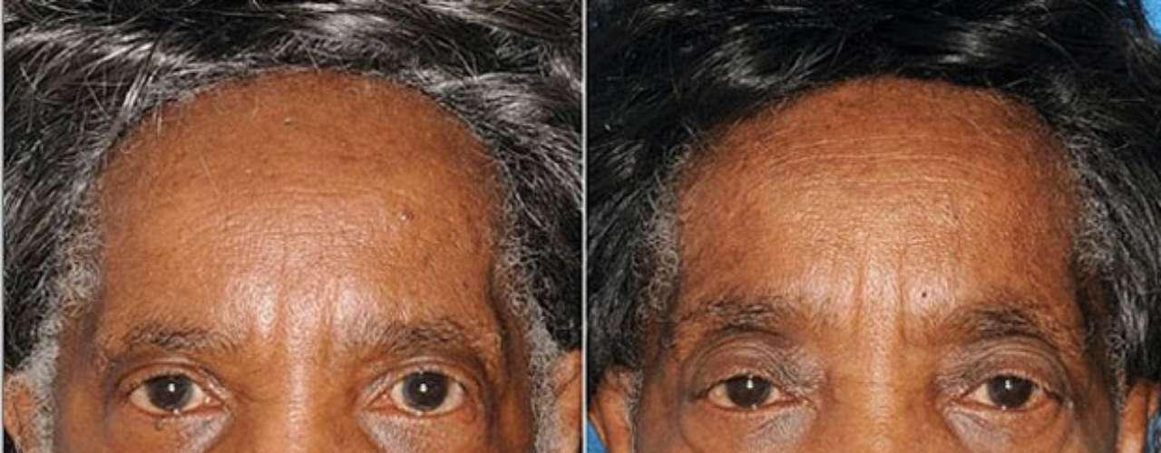 A gêmea da esquerda não é fumante e a da direita mantém o hábito por 29 anos. O envelhecimento na região dos olhos é maior na fumante