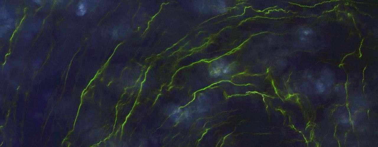 Causada por algas, maré verde é vista em Omã