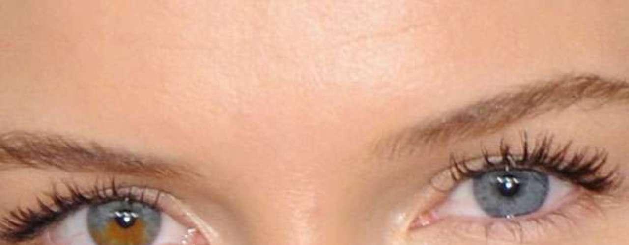 A atriz tem uma manchinha colorida no olho direito. Os olhos de cores diferentes dão um charme a mais a Kate