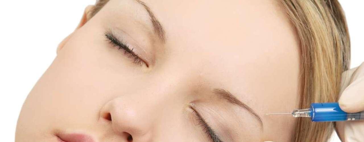 Nova versão do Botox em creme concentra de 0,5 a 3% da substância, exigindo uso prolongado por 30 dias