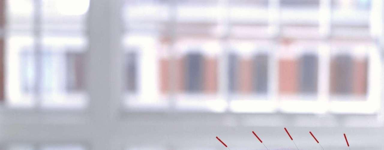 Invista na acupuntura - Para a medicina oriental a função sexual é um reflexo da saúde geral. Por isso, quando a energia do corpo não vai bem isso pode causar impacto na cama. Para os chineses a potência sexual está ligada aos rins, enquanto a libido tem relação com o funcionamento do fígado, explica o fisioterapeuta e acupunturista Márcio Luna, presidente regional da Associação Brasileira de Acupuntura. A acupuntura pode ajudar a melhorar a performance sexual, aumentar a libido e tratar problemas como ejaculação precoce e impotência. O primeiro passo é uma avaliação profunda do pulso e da língua para detectar qualquer alteração, mesmo que sutil, da energia do corpo, afirma Luna