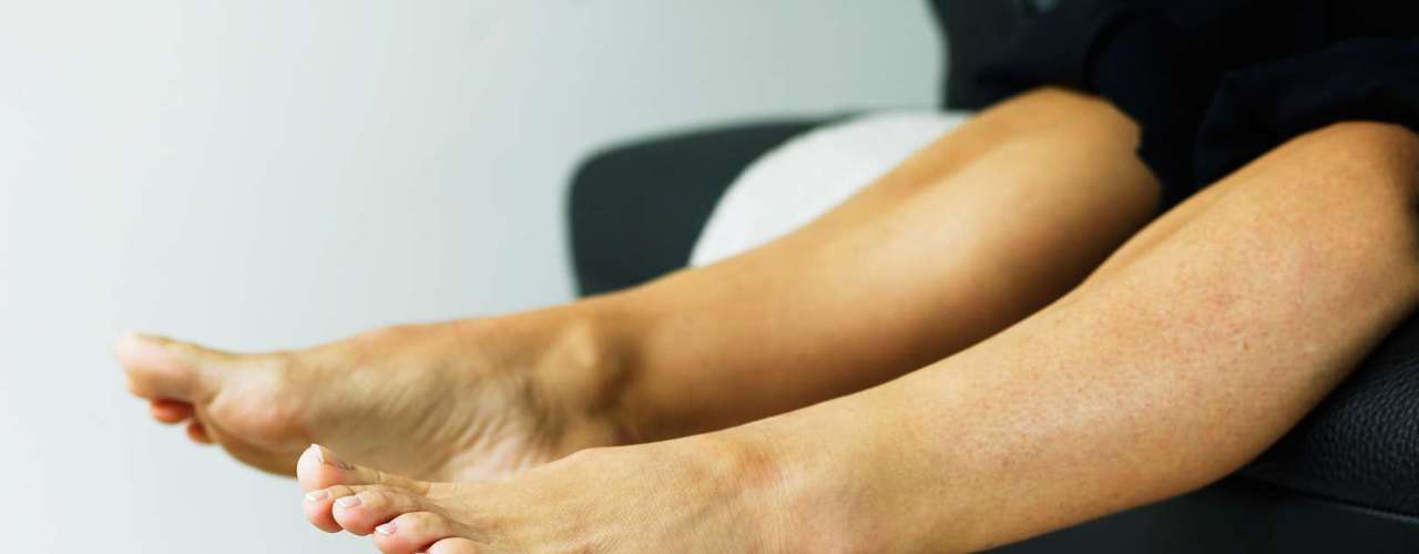 Qual a diferença entre joanete e calo? O calo, muitas vezes, é uma consequência do joanete. \