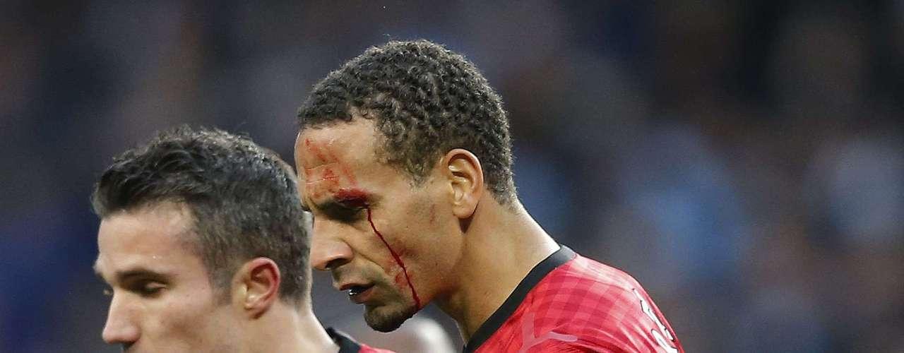 Agressão fez com que Ferdinand deixasse o gramado sangrando