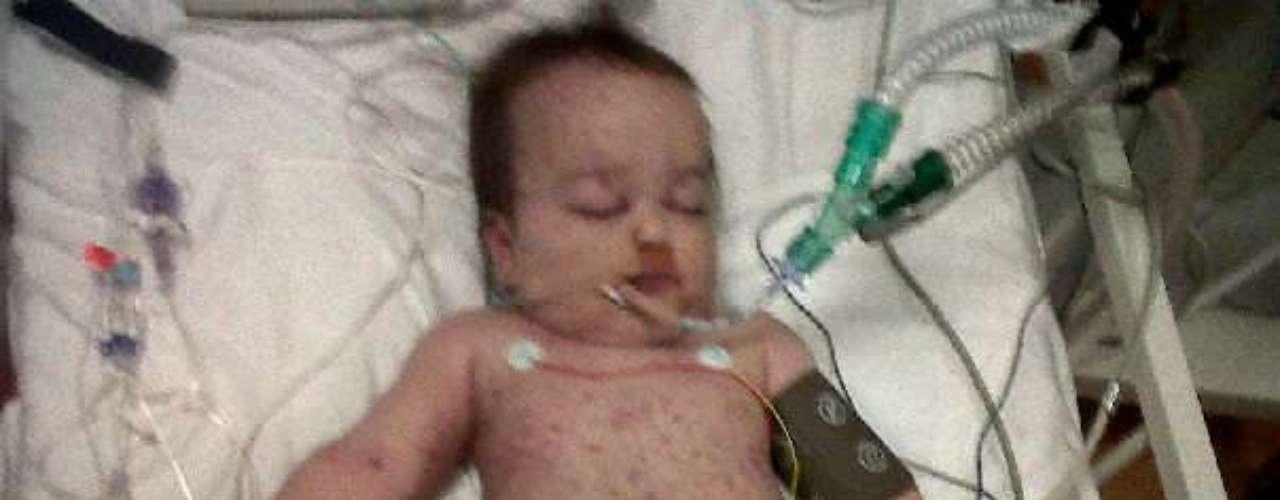 Exames confirmaram o temor dos médicos: a menina, então com 10 meses, tinha uma das piores formas de meningite e sofreu septicemia, uma reação descontrolada a uma infecção e que pode paralisar os órgãos em questão de horas
