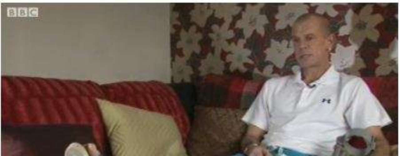 Um homem britânico quase morreu após um pé de atleta evoluir para uma infecção com uma superbactéria \