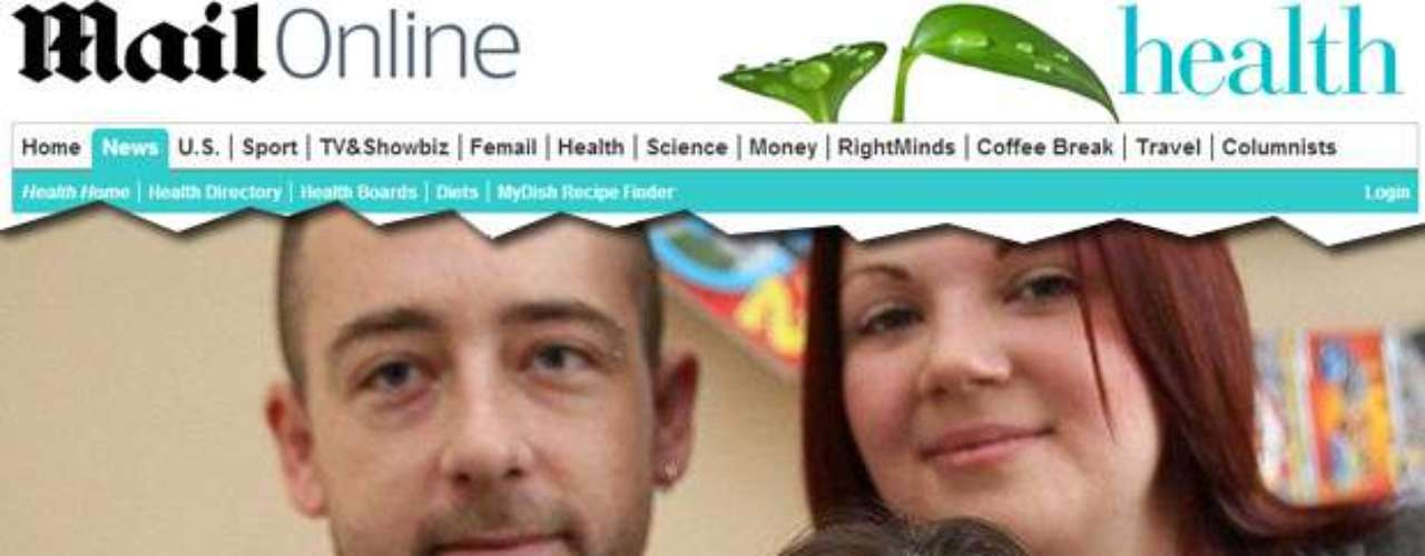 No Reino Unido, um casal descobriu que dois de seus três filhos tem uma rara doença. A síndrome de Cockayne afeta uma a cada 500 mil pessoas e os pacientes têm expectativa de vida de 12 anos