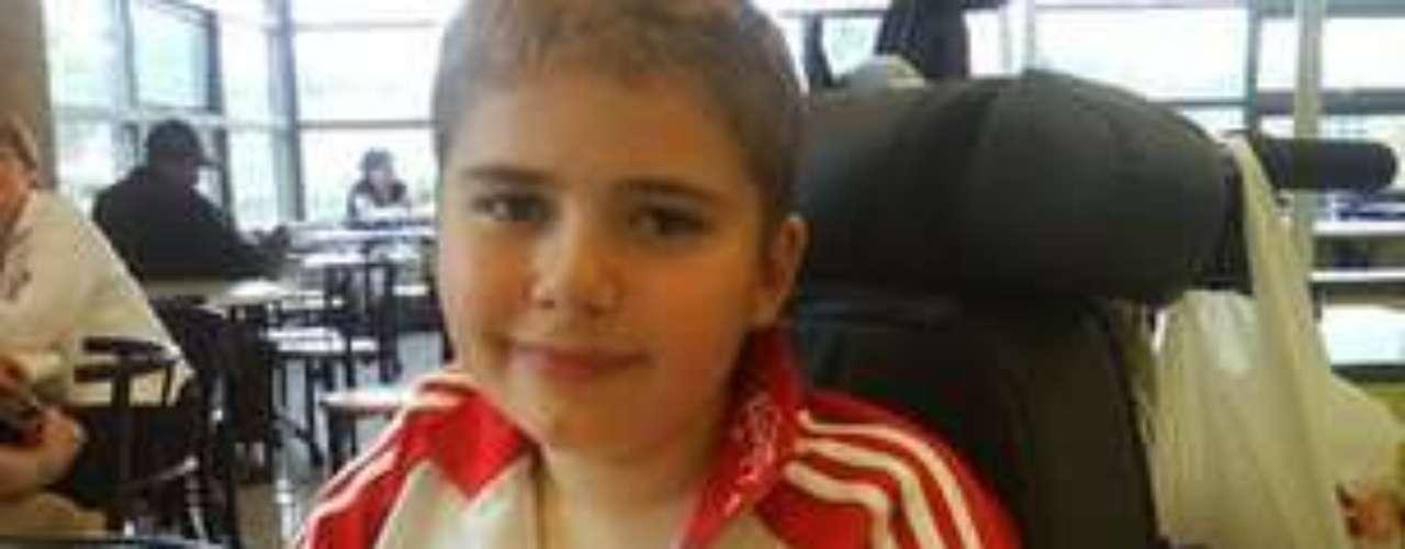 Com 11 anos, Kray Mundy foi levado às pressas para o hospital com sintomas de um acidente vascular cerebral (AVC), um caso raro entre crianças. Os médicos descobriram que o menino tinha má-formação em veias na região abdominal e no cérebro e o submeteram a uma cirurgia de emergência. O britânico conseguiu se recuperar, mas ficou com dificuldades para movimentar a mão direita