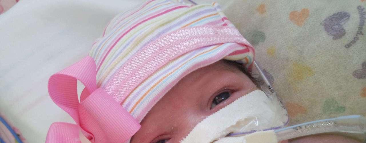 Audrina nasceu em outubro com uma rara doença que afeta apenas um a cada 8 milhões de pessoas - e 90% dos afetados são natimortos ou morrem dentro de três dias