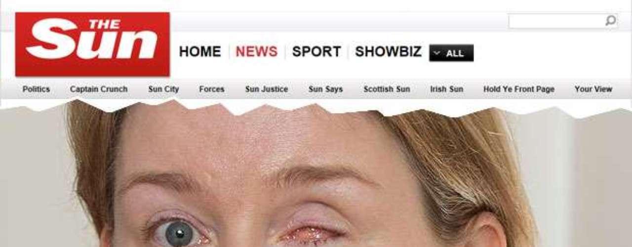 Britânica perdeu um olho após uma rara infecção por fungo. Elaafirma que problema foi causado por uma lente de contato.