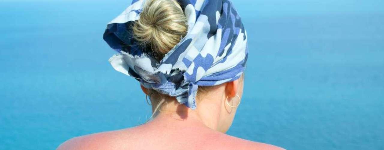 Composto também é eficaz no tratamento de leves queimaduras provocadas pelo sol, refrescando a região afetada e deixando-a livre da vermelhidão