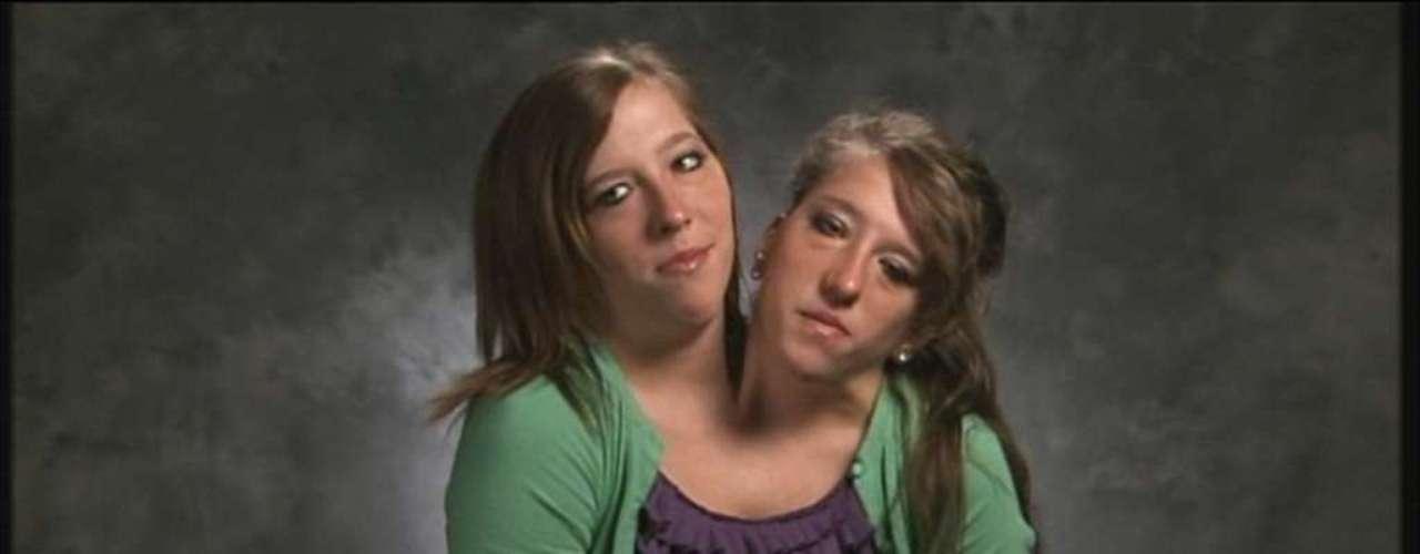 Abby e Brittany Hensel são gêmeas siamesas determinadas a viver uma vida normal. Como a maioria das garotas de 23 anos, as irmãs gostam de passar tempo com amigos, viajar nas férias, dirigir, praticar esportes e viver a vida ao máximo.As irmãs são objeto do documentário Abby and Brittany: Joined for Life (Abby e Brittany: Juntas para a vida toda)