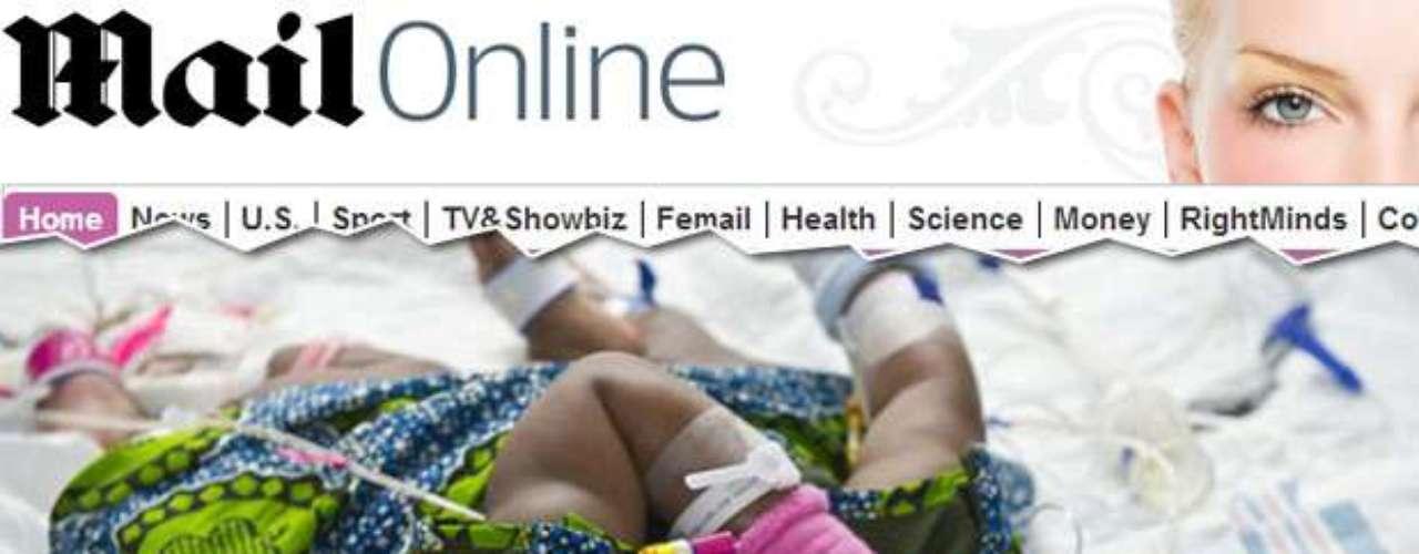 As gêmeas siamesas A'zhari (de rosa) e A'zhiah Jones (de azul) foram fotografadas antes de passar pela última etapa da cirurgia que as separou. As irmãs, nascidas nos Estados Unidos, passaram por uma operação considerada pioneira por constituir o primeiro registro de cirurgia feita ao longo de duas etapas em gêmeas siamesas compartilhando órgãos vitais e ligadas pelo abdômen. A operação foi um sucesso, e os médicos afirmam que a dupla se recuperou completamente do procedimento que durou 14 horas.