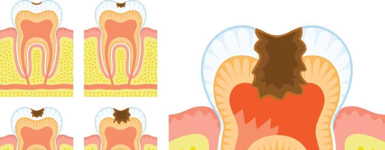 Os testes salivares, por exemplo, medem a capacidade tampão da saliva, que tem como função manter o pH da boca constante, além do nível de bactérias causadoras da cárie