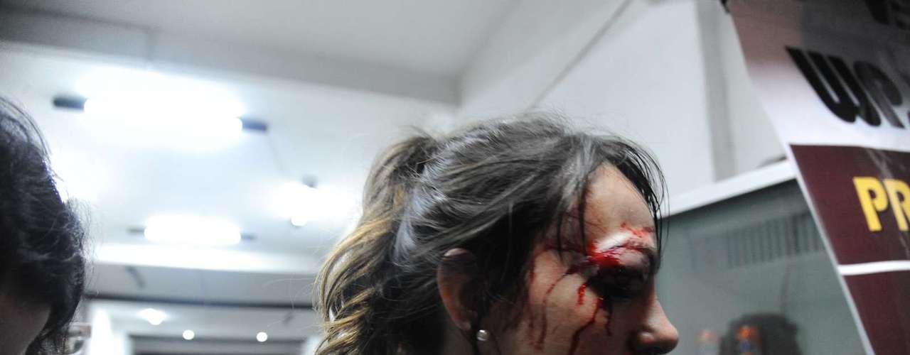 13de junhoA repórter Giuliana Vallone, do jornal Folha de S. Paulo, foi atingida no olho por uma bala de borracha da PM. Na sexta-feira, ela afirmou que já consegue enxergar pelo olho ferido, mas continuava no Hospital Sírio-Libanês