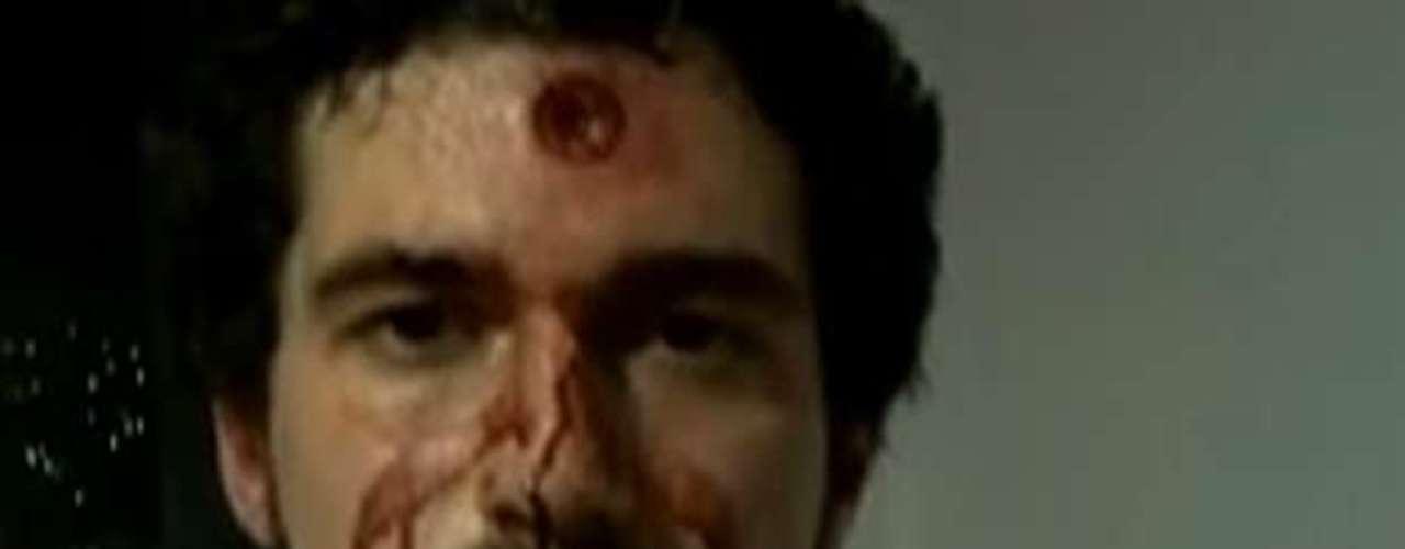 20 de junhoRepórter da globoNews gravavídeo ensanguentado após ser atingido por bala de borracha durante confrontos nos protestos no Rio de Janeiro
