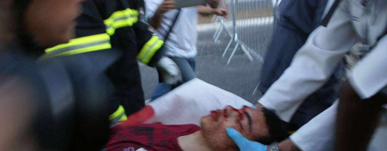22 de junho -Oestado de saúde do manifestante que caiu de um viadutoé considerado grave