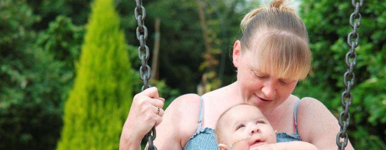 Um bebê com uma rara doença está surpreendendo médicos e a família no Reino Unido. A criança sofre da síndrome de Patau, que faz com que ela \
