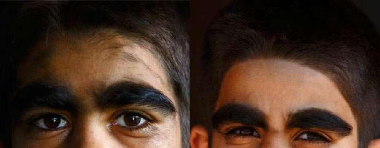 A medicina ainda não conhece uma cura para essa doença. Tratamentos podem ser feitos com técnicas de depilação. Na foto, o filho, Niraj