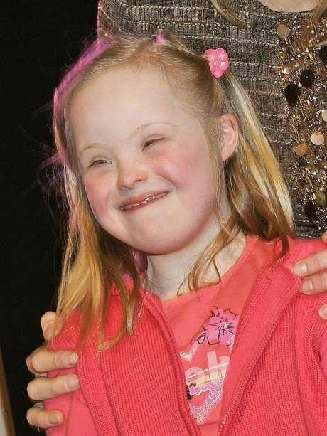 A síndrome de Down é causada pela presença de três cromossomos 21, ao invés de dois Foto: Getty Images