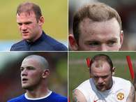 Wayne Rooney's hair has been a matter of national interest in England in recent years. Every time he goes bald, he starts to lose his scoring powers. Terra recounts the career or Rooney's hair, including the two transplants to bring it back from the death. Foto: Getty/Terra
