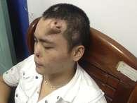 Cirurgiões fazem crescer nariz artificial na testa de paciente para transplante
