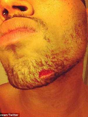 Chris Brown poste esta foto tras la agresin Foto: Twitter