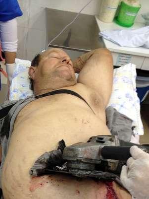 Homem fica com serra presa na barriga após se ferir durante corte de madeira Foto: Assessoria do Hospital Vida e Saúde / Divulgação