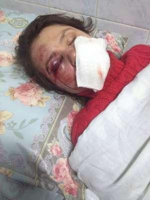 Tetyana aparece deitada no hospital após apanhar Foto: Twitter / Reprodução