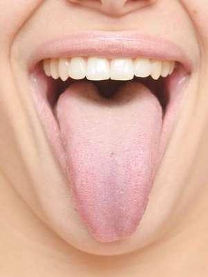 A maior parte das bactérias fica instalada na parte de cima da língua. Por isso, sempre que escovar os dentes, lembre-se de escovar também a língua. Essas bactérias com tempo provocam halitose (mau hálito). Em situações de emergência, para limpar a língua, é possível passar uma gaze enrolada nos dedos ou mesmo algodão.  Foto: Shutterstock