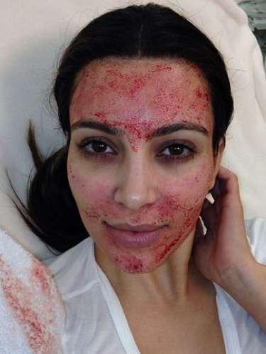 Algumas mulheres famosas escolhem truques dos mais estranhos para cuidar da beleza da pele e cabelos. Conheça os truques a seguir. Kim Kardashian: para deixar a pele mais bonita, a socialite faznjeções no rosto com o próprio sangue