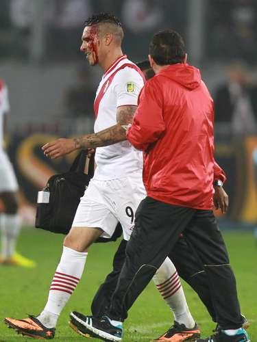 Com um grande corte na sobrancelha esquerda, Guerrero deixou o campo em vários momentos; por fim, foi conduzido do estádio de ambulância