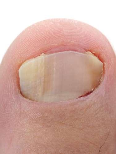 Unha - A micose mais comum que pode afetar as unhas é a onicomicose subungueal distal e lateral. Ocorre também nas unhas das mãos, porém é mais comum nas unhas dos pés. É caracterizada pelo descolamento da borda livre da unhas, geralmente inciado por um dos cantos da unha, deixando esta área oca, o que pode levar à formação de uma uma maceração amarelada em baixo da unha onde há o descolamento. Para evitar o problema, deve-se ter certeza de que o material de manicure e pedicure deve ser esterilizado e lixas e palitos devem ser descartáveis. Também é importante evitar o uso de calçados fechados por longo período e usar chinelos em lava pés, em áreas ao redor de piscinas e em duchas coletivas