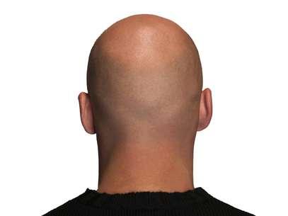 A partir dos 50 anos, mais da metade dos homens sofre de calvície Foto: Getty Images