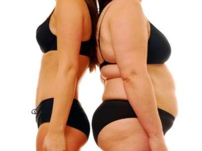 Estudo mostrou que até nove em cada dez pessoas obesas podem ter esta alteração genética Foto: Getty Images